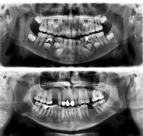 İlginç Röntgen Görüntüleri